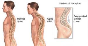 Kyphosis-Lordosis-ADAM
